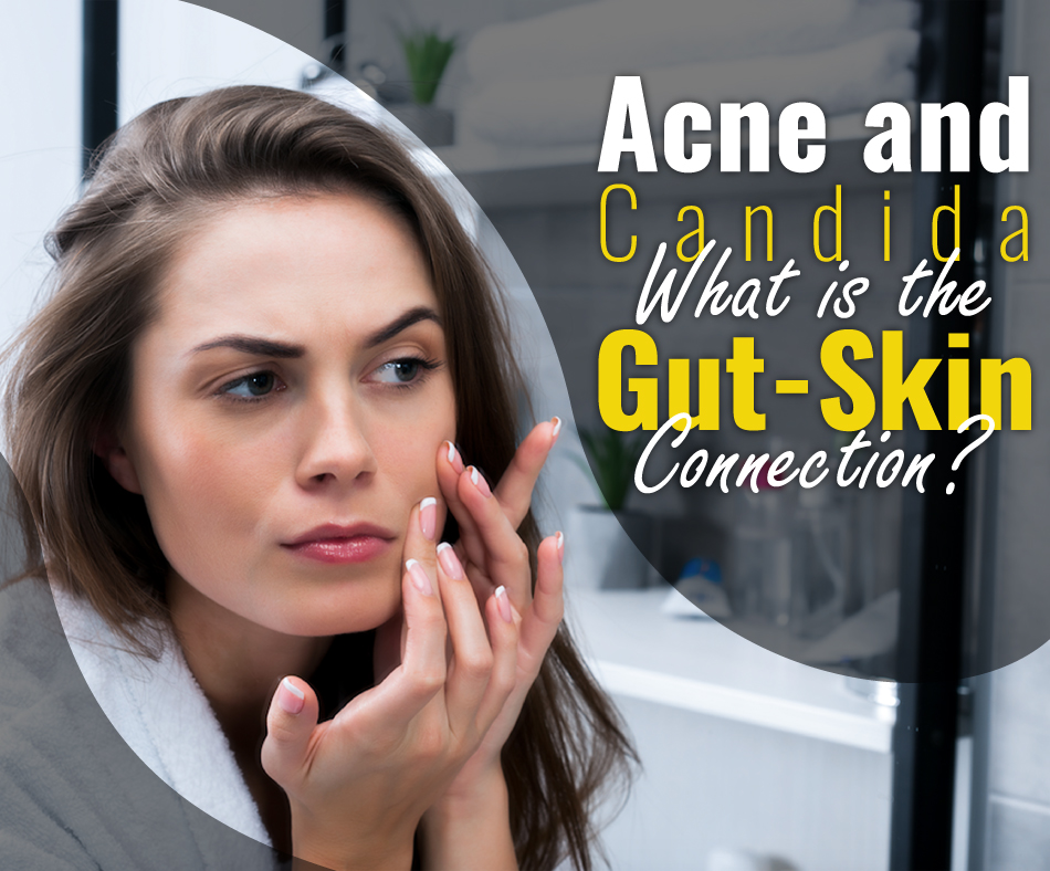 acne and candida